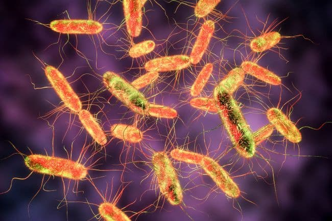 Keep your kitchen safe from Salmonella This is how Salmonella looks like